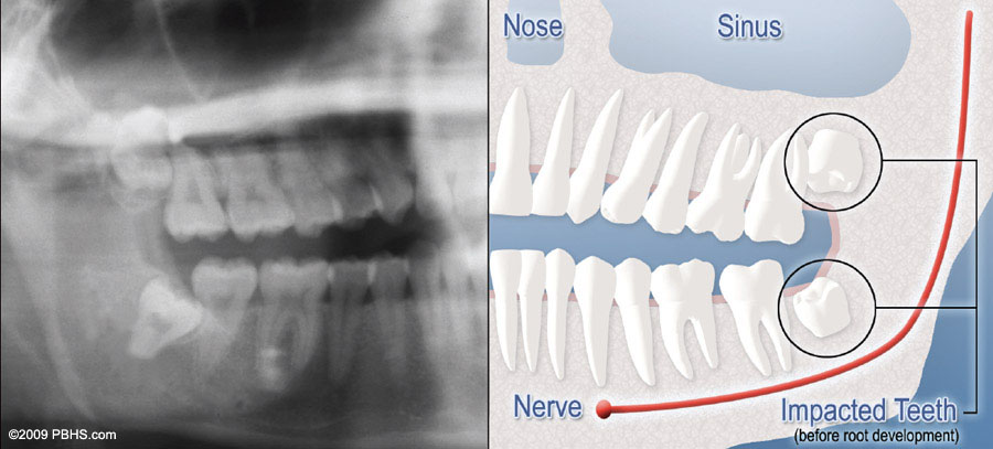 diagram-of-x-ray-and-impacted-wisdom-teeth